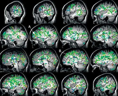 Brainmriduringorgasm